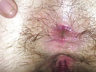 Wife hairiest asshole ever